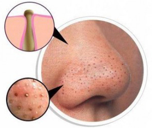 Blackheads Causes