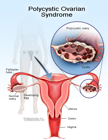 pcos and amenorrhea - women health info blog, Skeleton