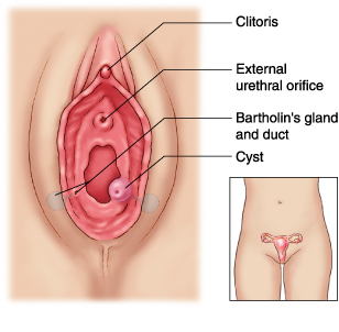 Bartholin Cyst Women Health Info Blog