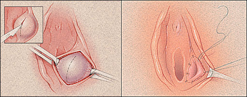 recurring Cysts on genitals Reproductive Organs