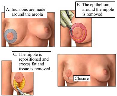 Surgery for breast asymmetry