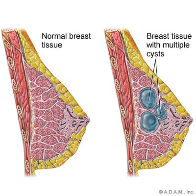 Breast cysts - Symptoms and causes - Mayo Clinic