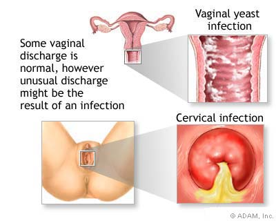 vaginal discharge - normal and abnormal - women health info blog, Skeleton