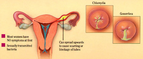 Vaginal discharge evaluation