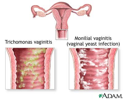 Yellow vaginal discharge  Vaginal Bacterial Infection Sores