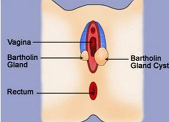Bartholin Cyst causes and symptoms -  9.6KB