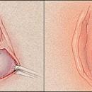 Bartholin Cyst removal