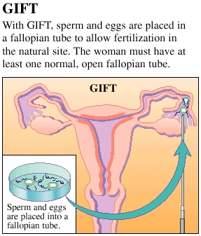Gamete Intrafallopian Transfer (GIFT)