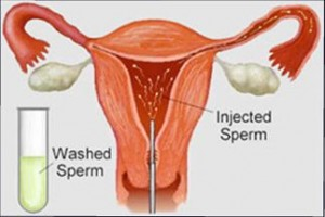 Artificial Intrauterine Insemination