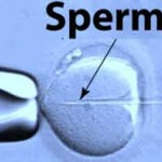 Intracytoplasmic sperm injection – ICSI