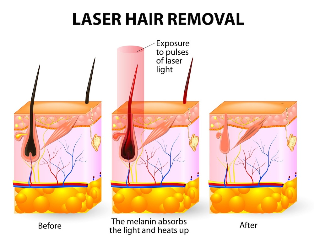 How Does Laser Hair Removal Work Women Health Info Blog
