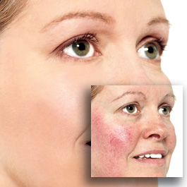 Rosacea Treatment Women Health Info Blog