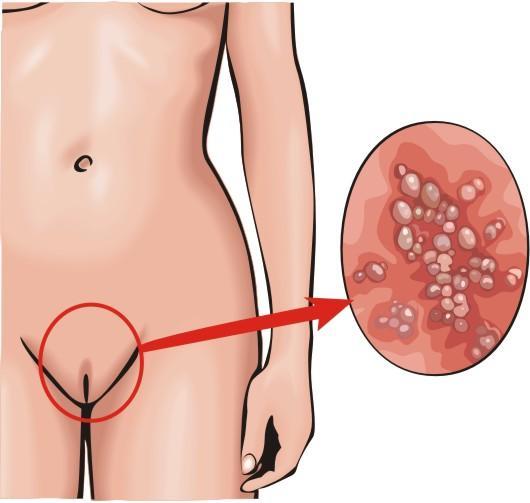 ulcers on vagina #10