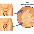 HPV transmission and HPV symptoms