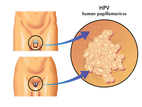 hpv transmission and hpv symptoms - women health info blog, Skeleton