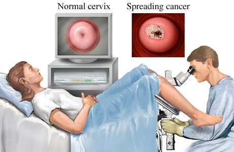 Pap test and colposcopy