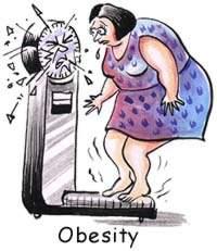 Obesity - high BMI