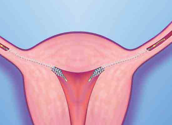 Non-surgical sterilization