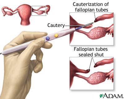 Surgical sterilization