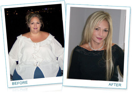 Weight Loss Success story 20 - Women Health Info Blog