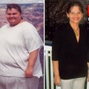 Weight Loss Success story 25