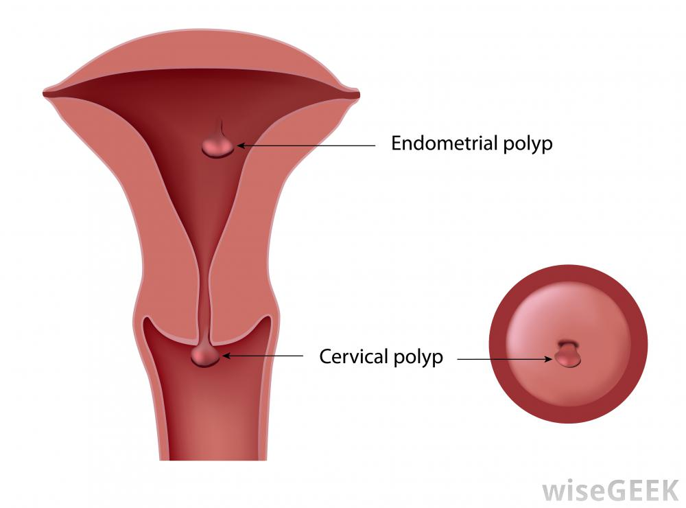 Polyps Women Health Info Blog
