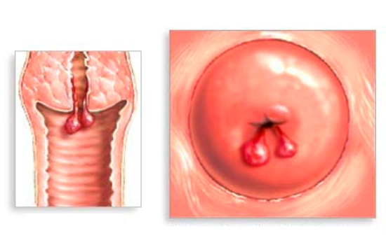 cervical polyps - women health info blog, Skeleton