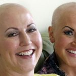 Breast cancer sisters