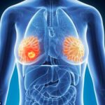 Breast cancer hidden signs