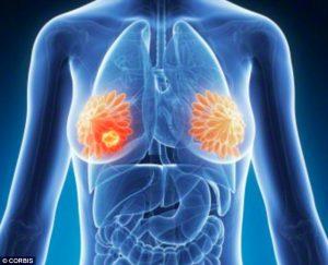 Breast cancer hidden signs