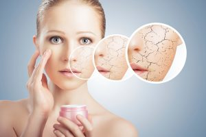 Dry skin - Vitamin E deficiency
