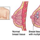 Fibrocystic breasts diagnosis and treatment
