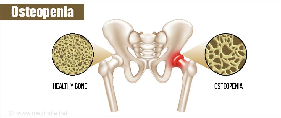 Osteopenia Women Health Info Blog