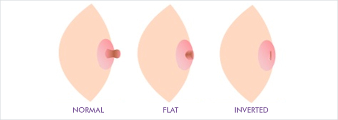 breast causes nipples inverted of