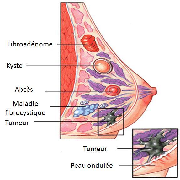 Des solutions naturelles pour la maladie fibrokystique