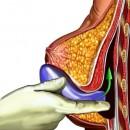 Implants mammaires – risques et effets secondaires