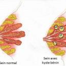 Seins fibrocystiques
