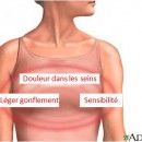 Douleurs mammaires
