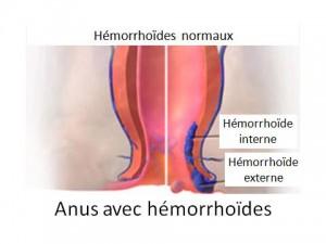 Hémorroïdes