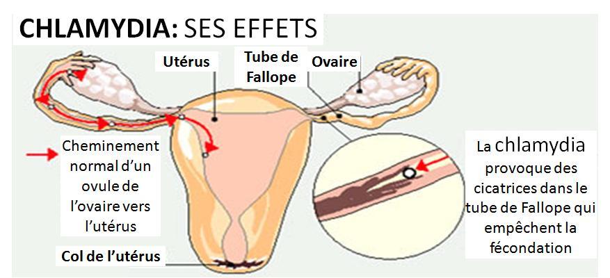 chlamydia infertilité