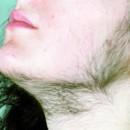 Symptômes du syndrome ovarien polykystique