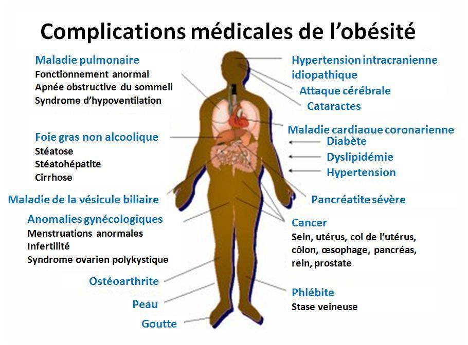 Obésité et santé