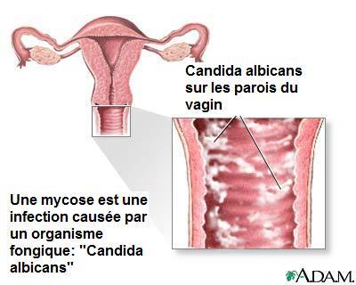 a quoi ressemble une mycose vulvaire
