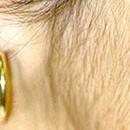 Quelles sont les principales causes d'hirsutisme ?