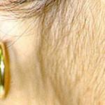 Hirsutisme causes - La Santé des Femmes et Style de Vie
