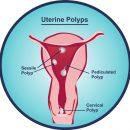 Polypes utérins