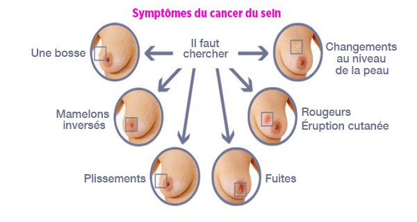 signe cancer sein