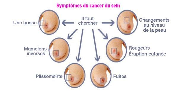 Symptômes du cancer du sein