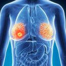 Signes cachés de cancer du sein
