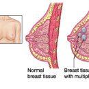 Seins fibrocystiques : diagnostic et traitement